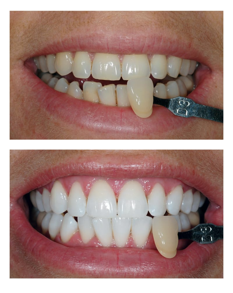 Teeth Whitening Bromley All Smiles Dental Tooth Whitening Bromley