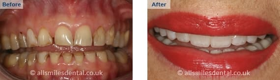 Before & after comsetic treatment
