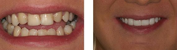 dental-veneers-bromley-case-1-small