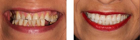 dental-veneers-bromley-case-6-small